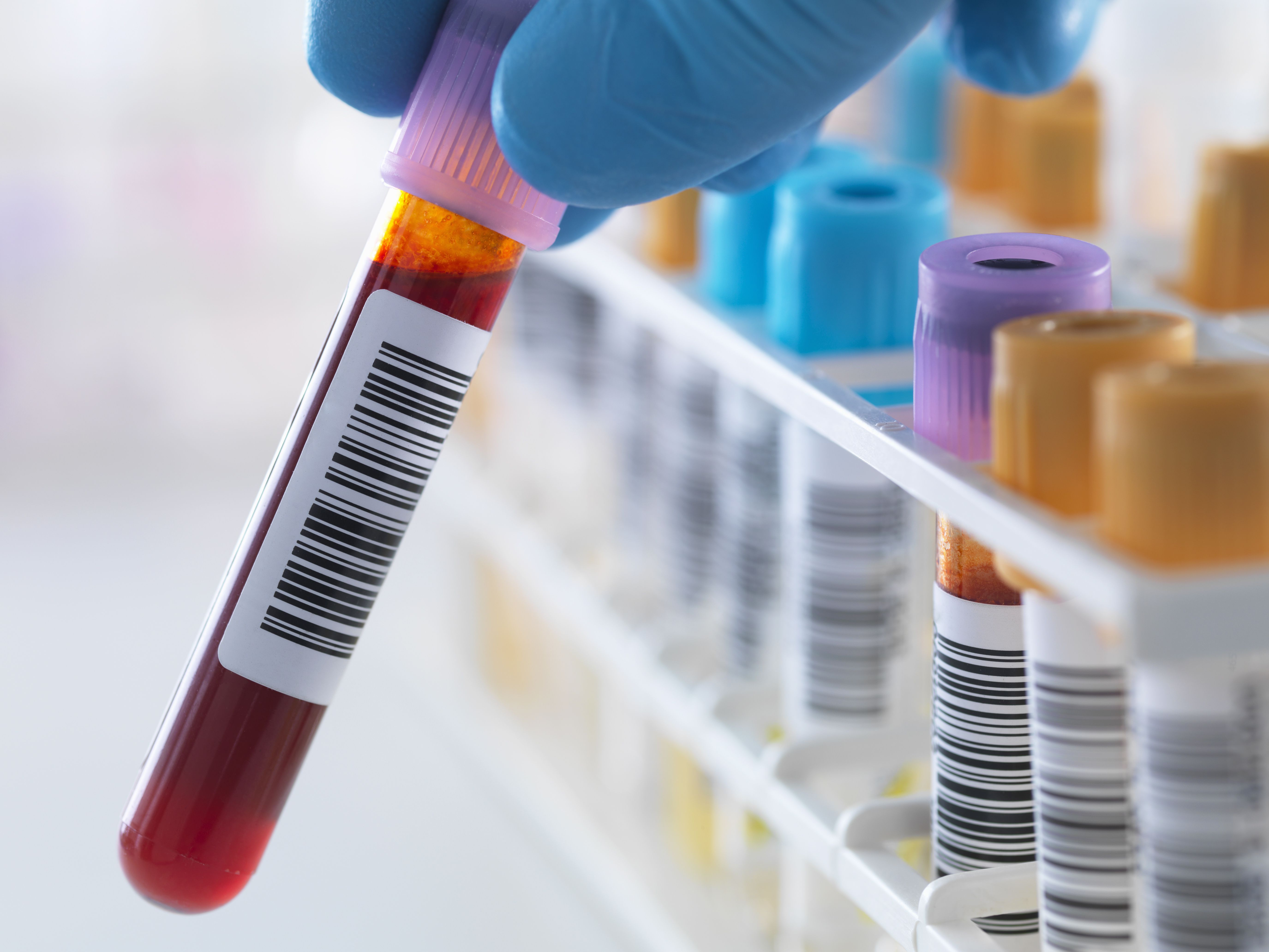 What Is Included in a Blood Drug Test for Employment?
