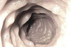 Artwork based on an endoscopic image of a healthy colon.